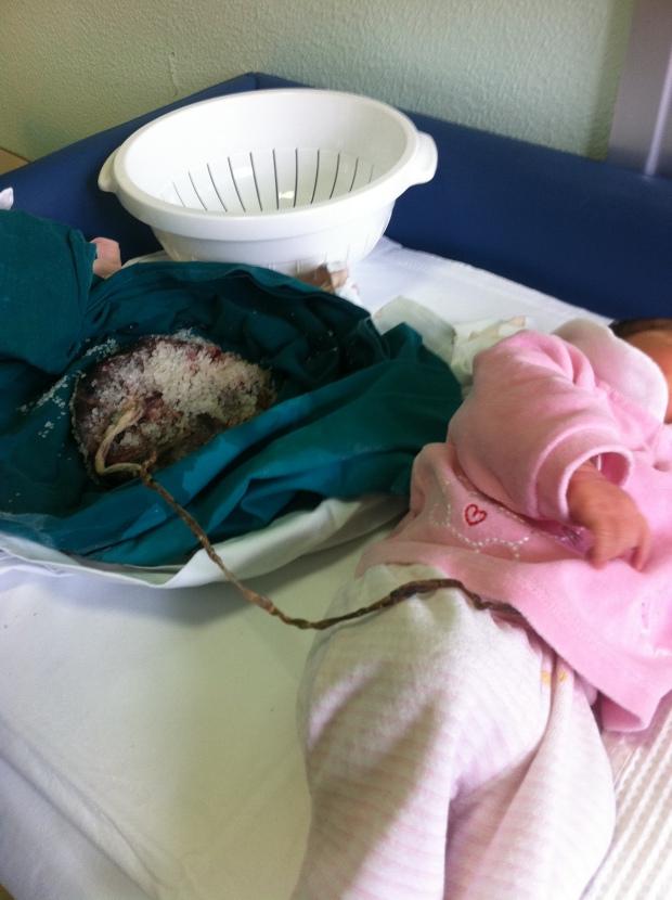 cordone-placenta-2-giorni